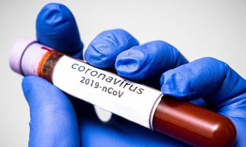 Coronavirus: Emplear Correctamente los Aceites Esenciales